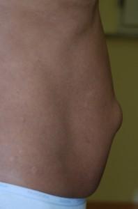 Ernia epigastrica