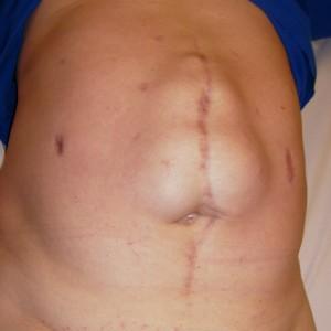Laparocele o ernia incisionale