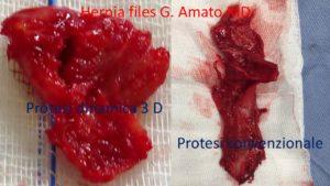 protesi dinamica 3d e protesi convenzionale